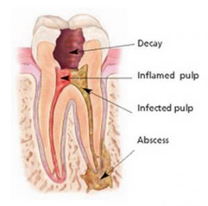toothrct