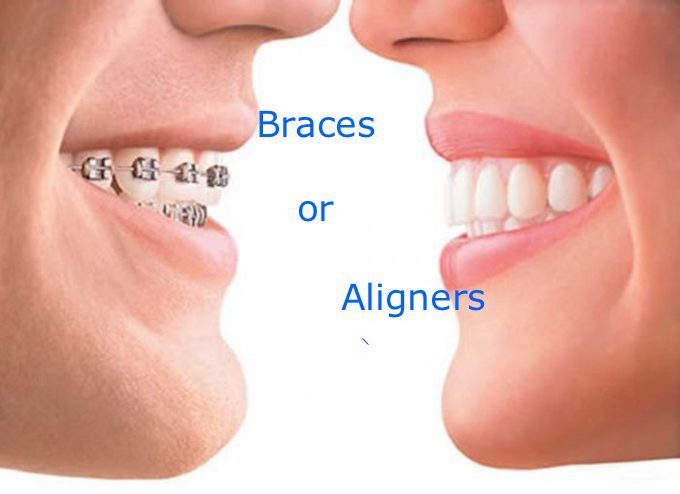 What is better Braces or Aligners